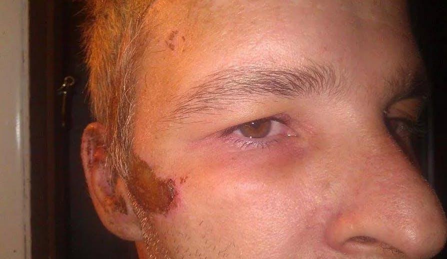 Jeffrey Bane injury photo