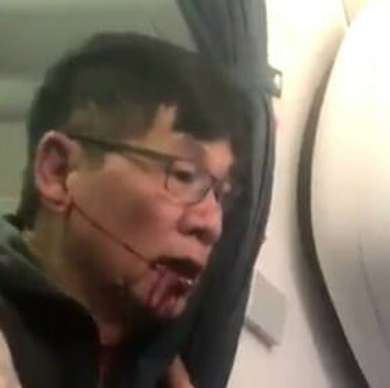 United bloody passenger