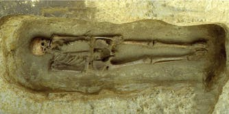 skeleton with knife arm prosthetic