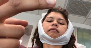 zendaya wisdom teeth removed twitter