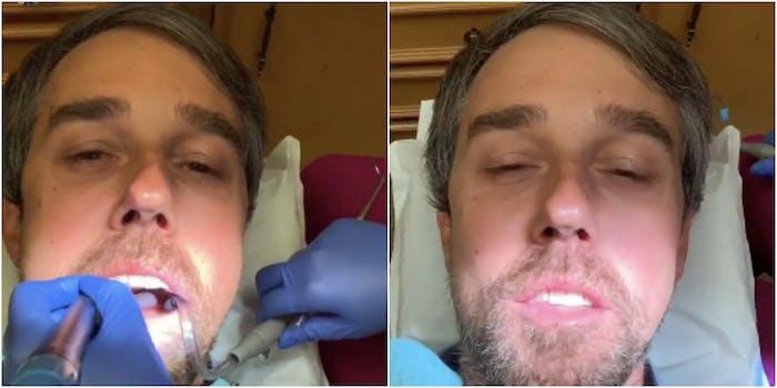 Beto dental work memes