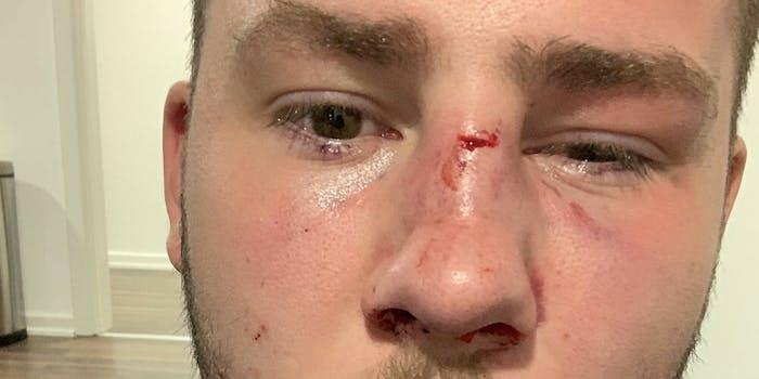 alex-tant-brown-alleged-attack