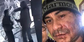 Left: white man seen throwing acid on the face of Mahud Villalaz, right: Mahud Villalaz with second degree burns on his face