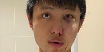 Racist attack - coronavirus