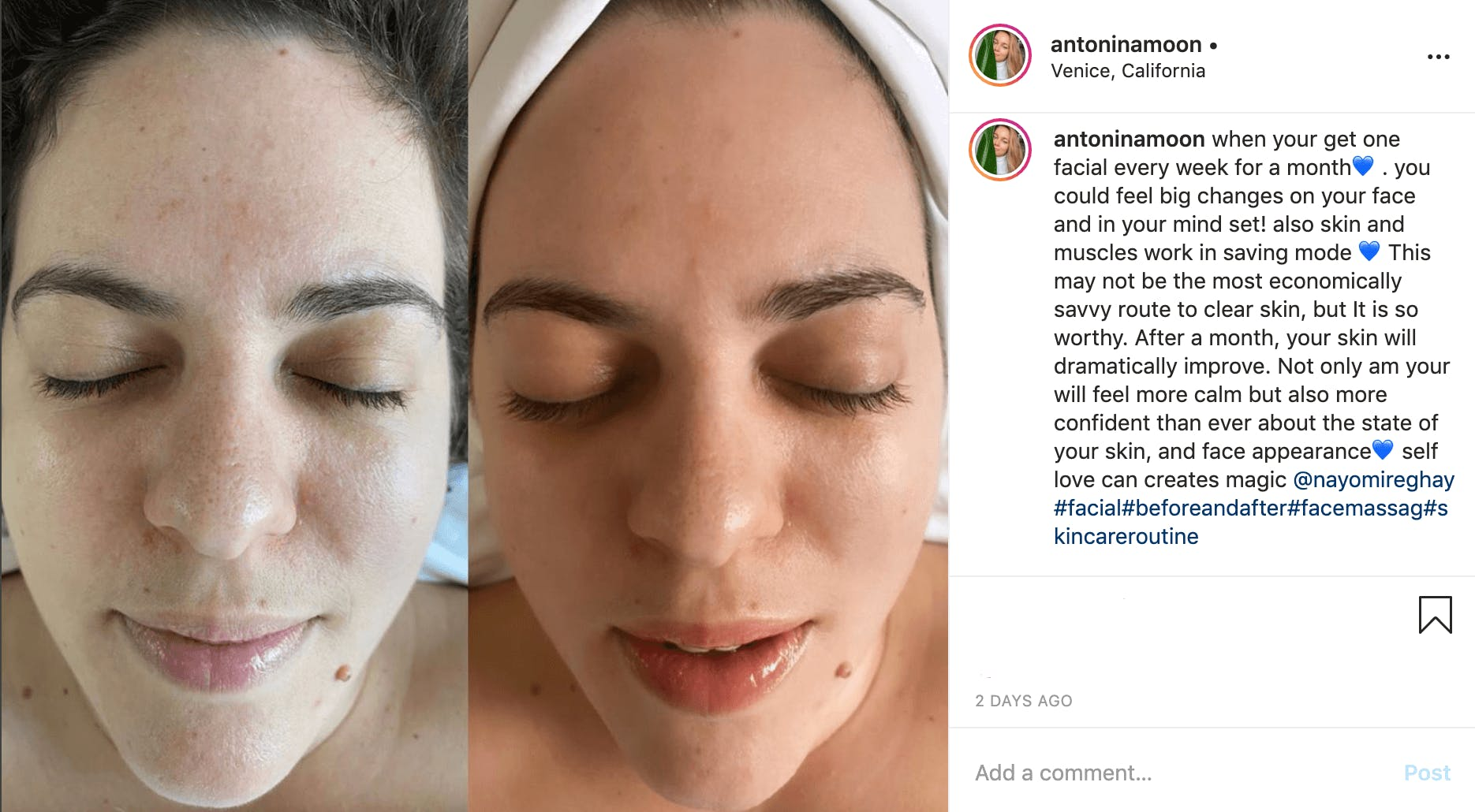 nayomi holistic face lift before after