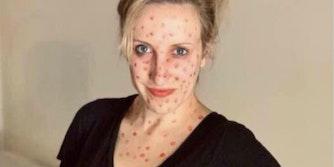 anti vax karen halloween costume