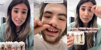 tiktok veneers check shark teeth