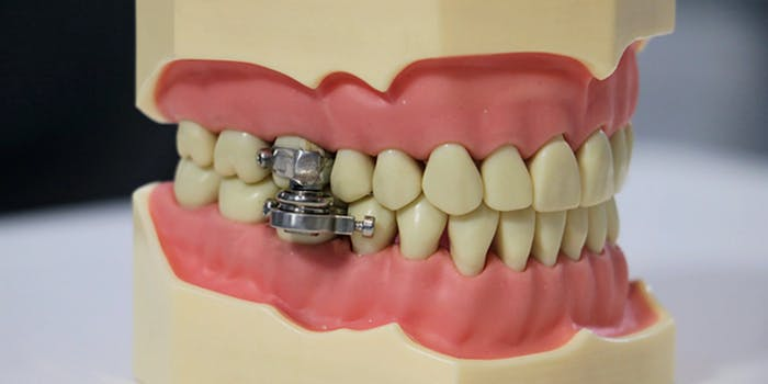 jaw locking device