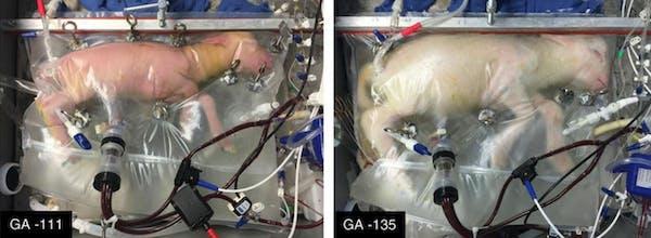 artificial womb placenta lamb premature babies