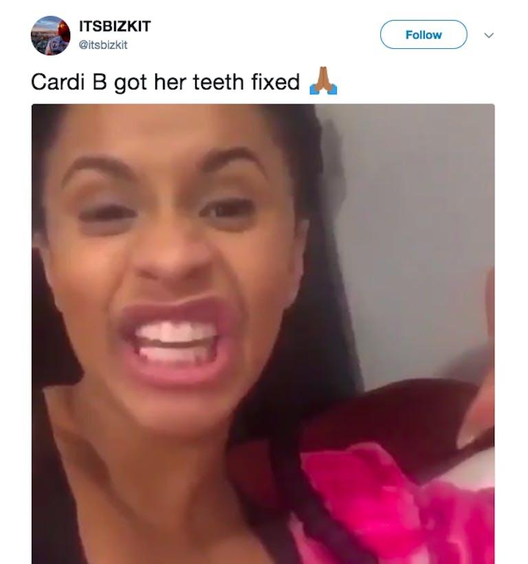 cardi b teeth