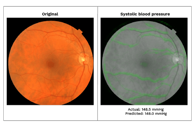 Sample retinal images highlighting important areas
