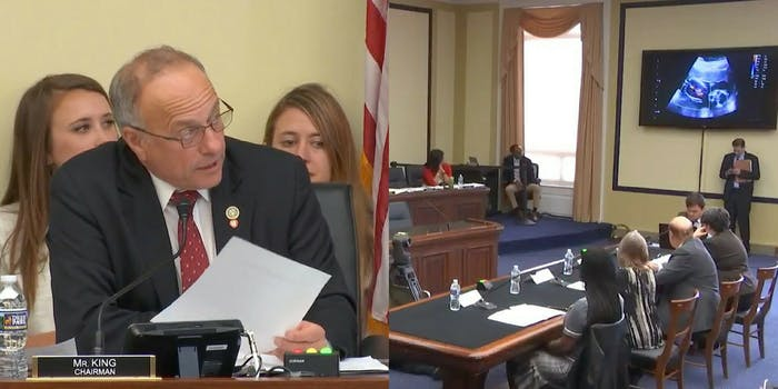 Rep. Steve King narrates an ultrasound during a House Judiciary Committee Hearing