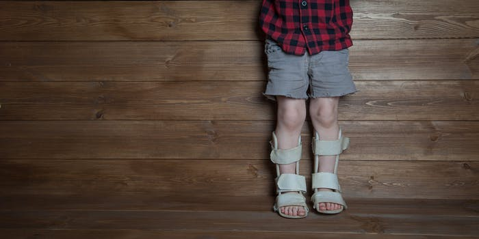 Child with Leg Braces