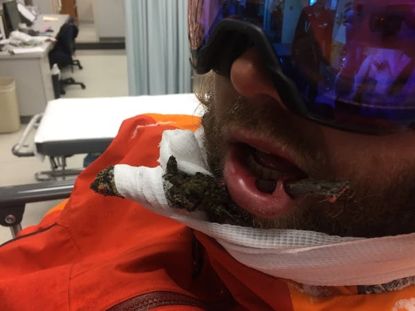Skier takes stick to the face