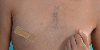 Man with bandage over nipple
