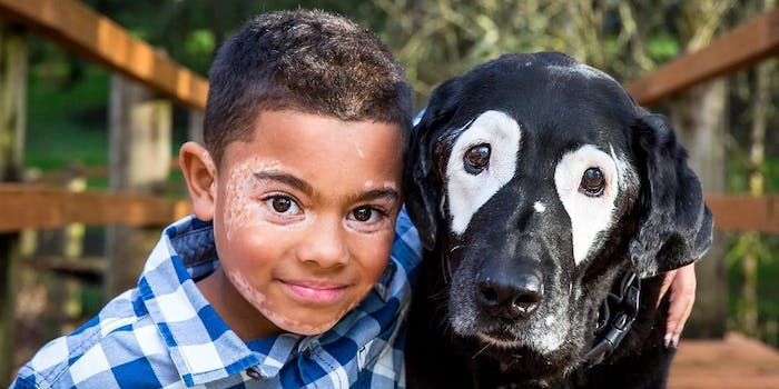 White Eyed Rowdy, a dog with vitiligo, poses with 8-year-old Carter, who has the same condition.